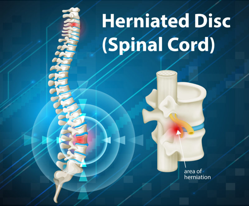Herniated Disc Injury After Car Accident